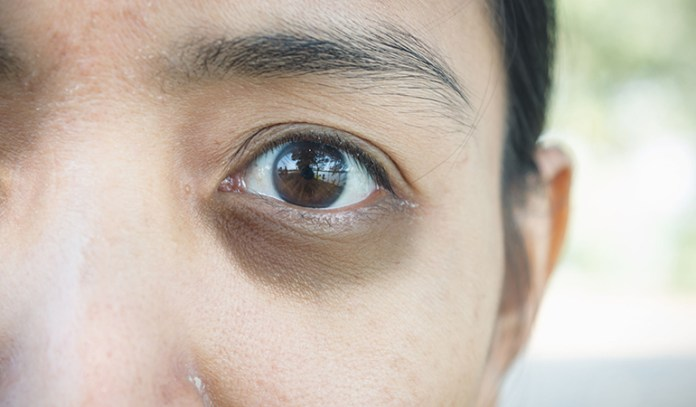 Increased melanin production causes dark circles, which can be treated with cucumber slices or juice