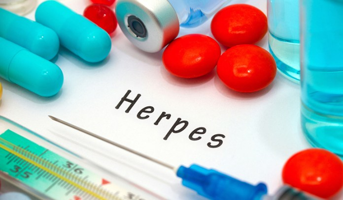 sores on genitals in herpes