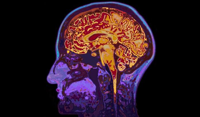B vitamins slows brain shrinkage