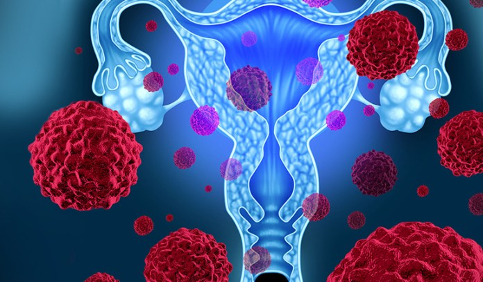 Taking birth control pills, obesity, and taking estrogen after menopause may lead to uterine cancer
