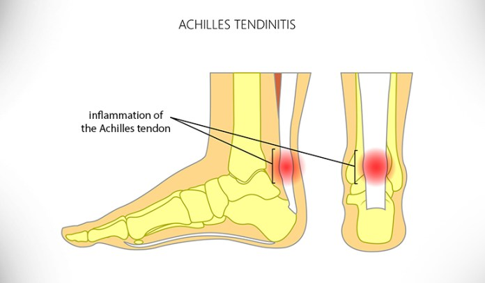 Achilles tendinitis is the inflammation of the Achilles tendon and can cause heel pain