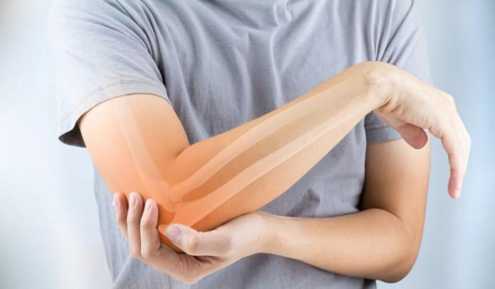 Tennis elbow is an overuse soft tissue injury.
