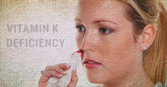 Vitamin K deficiency leads to poor blood clotting and heavy periods.
