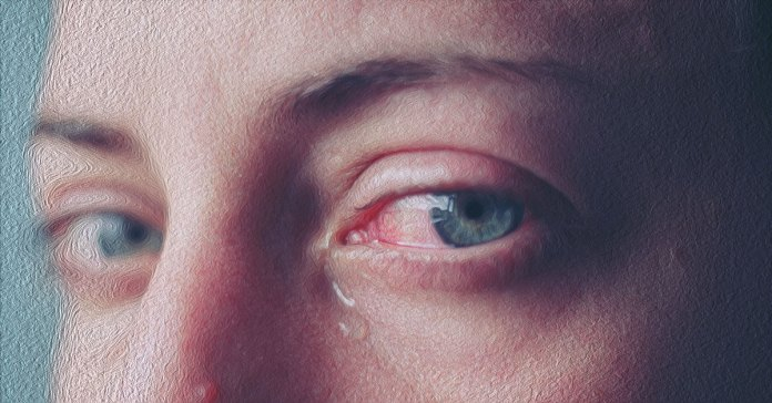 Watery eyes can be treated at home with a warm compress and a chamomile eyewash.