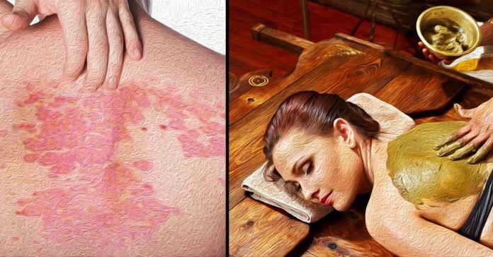Ayurvedic treatment for psoriasis.