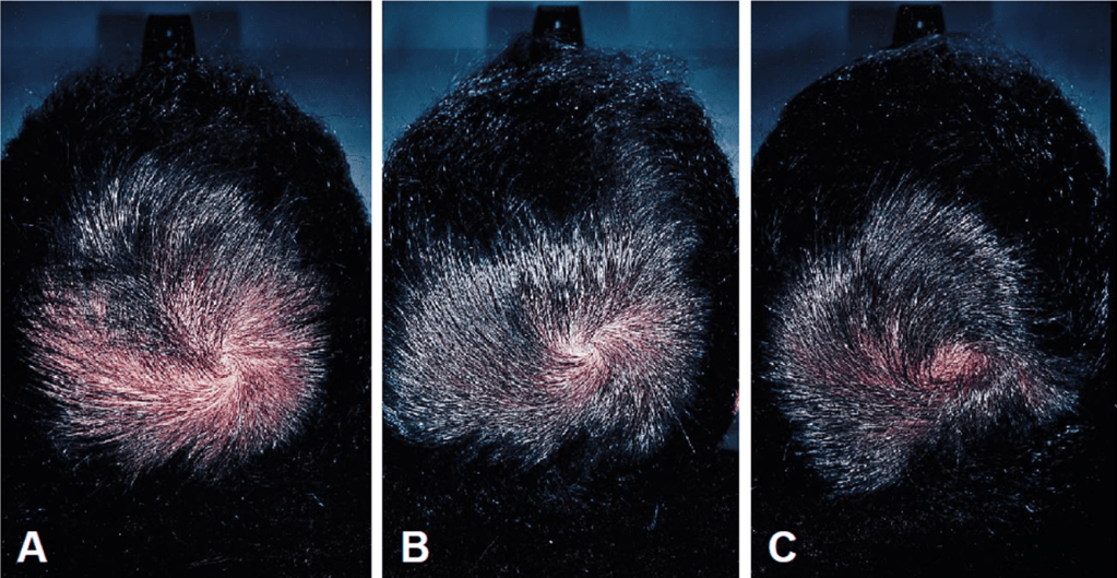Finasteride and hair loss. This treatment can give amazing results