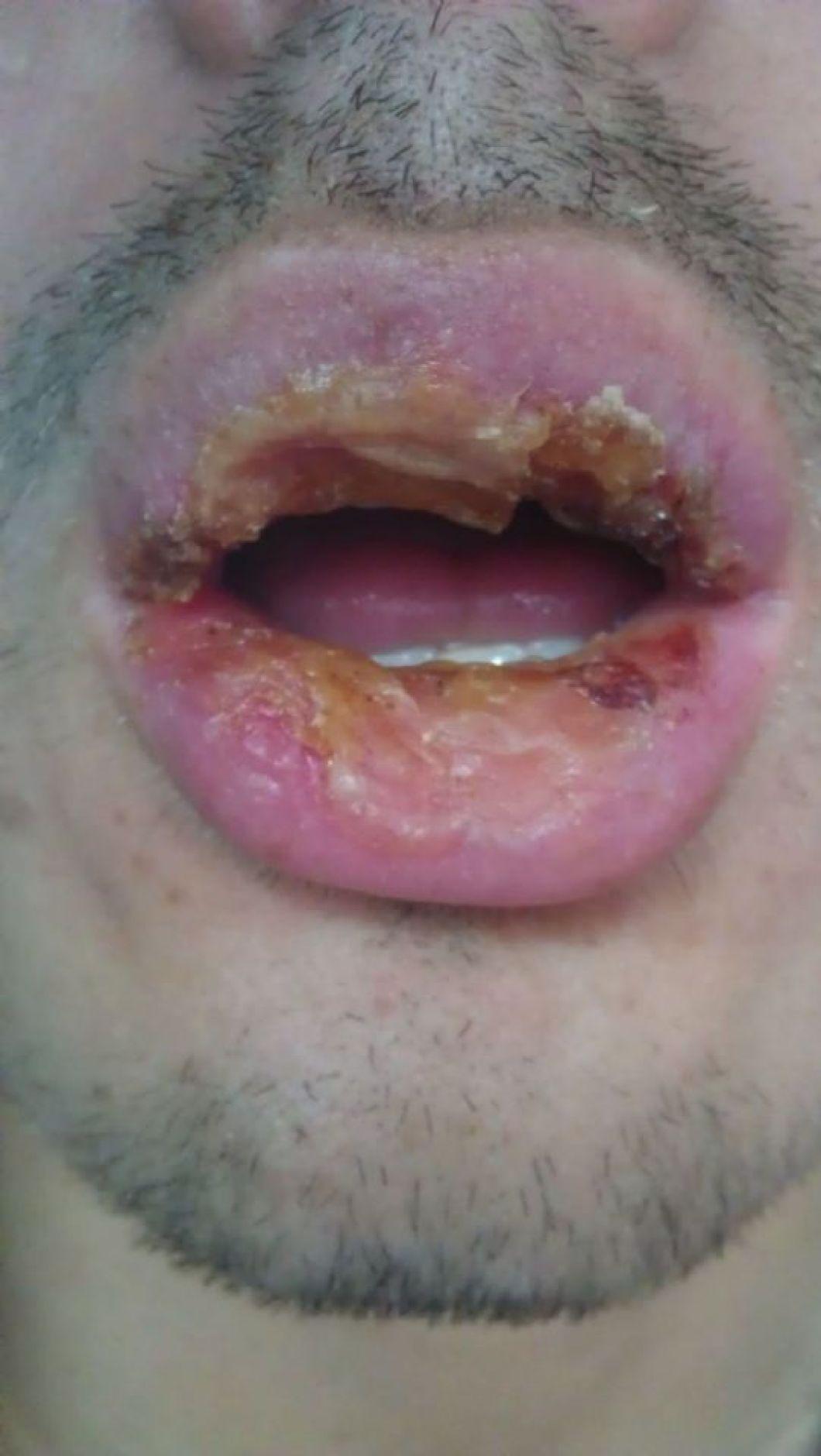 Exfoliative cheilitis cure 2019