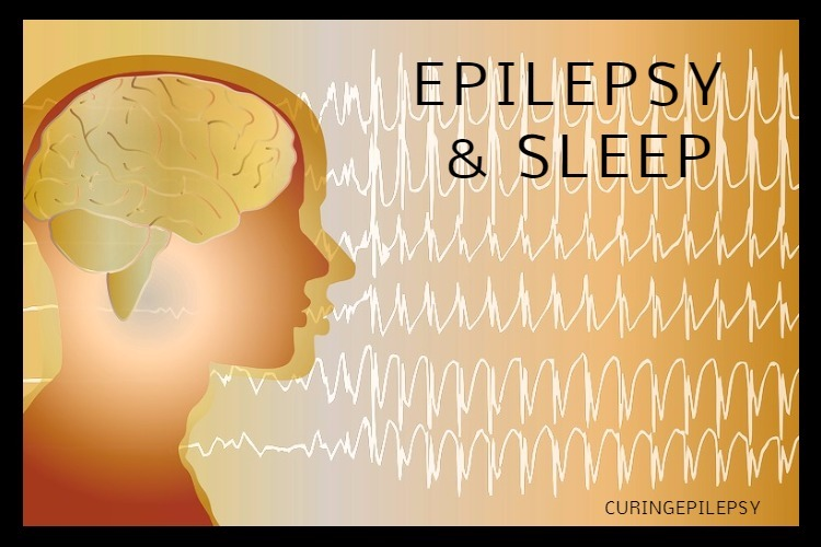 Epilepsy and Sleep Apnea: A Collaborative Treatment