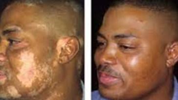 Cura do vitiligo em três dias é retirada de placenta humana em Cuba