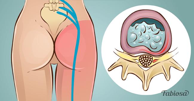 Ejercicio para aliviar dolor de la ciatica