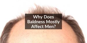 baldness affect men