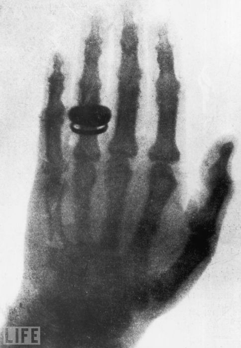 The disk on Roentgen's wife's hand is her wedding ring. This Professor's discovery of X-ray technology earned him the first Nobel Prize in Physics.