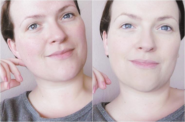 tips tegen rode huid