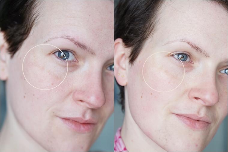 eucerin anti pigment review na 4 - Getest | Eucerin Anti-Pigment #2 (met voor- en nafoto's)