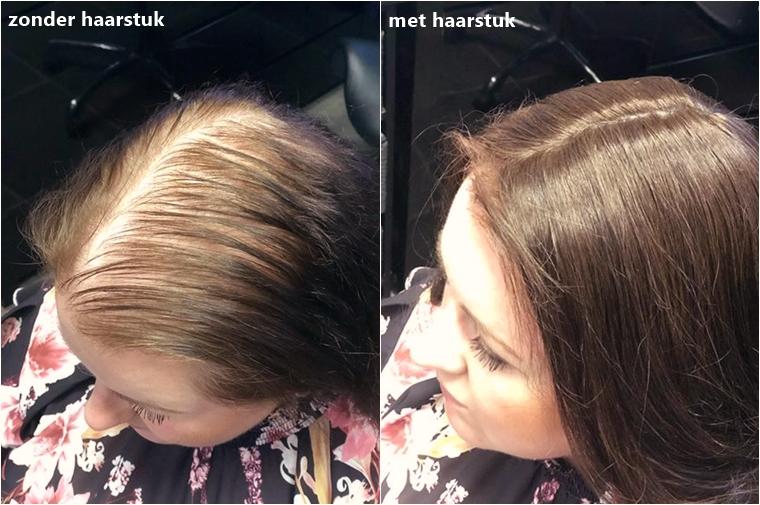 mariska alopecia blog 3 - Het verhaal van.. | Mariska over alopecia