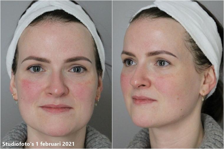 c me skincare review 9 - Skincare Challenge | Mijn ervaring met C-ME Skincare van DermaClinic