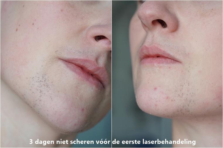 laserontharing gezicht ervaring Triaderm 1 - Personal | Een update over de laserontharing tegen overbeharing in mijn gezicht