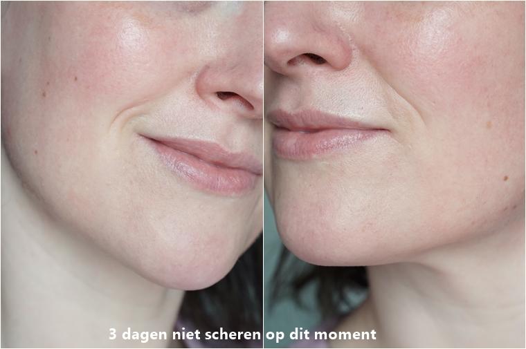 laserontharing gezicht ervaring Triaderm 2 - Personal | Een update over de laserontharing tegen overbeharing in mijn gezicht
