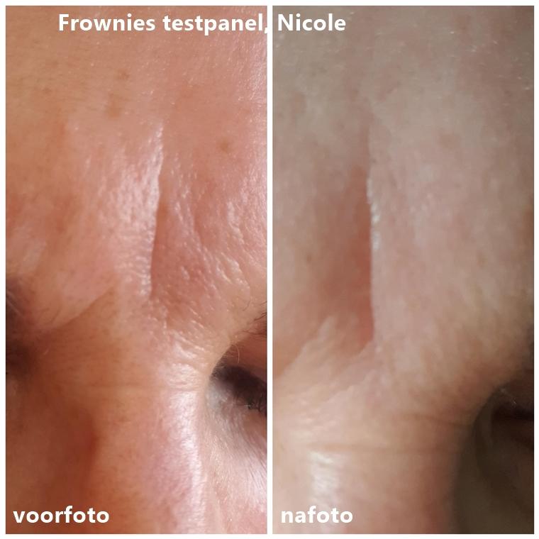 frownies nicole collage - Frownies testpanel #2 | De resultaten!