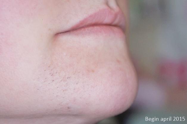 overbeharing gezicht vrouw 1 - Personal | Mijn overbeharing