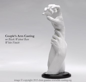 Hand and Arm Casting