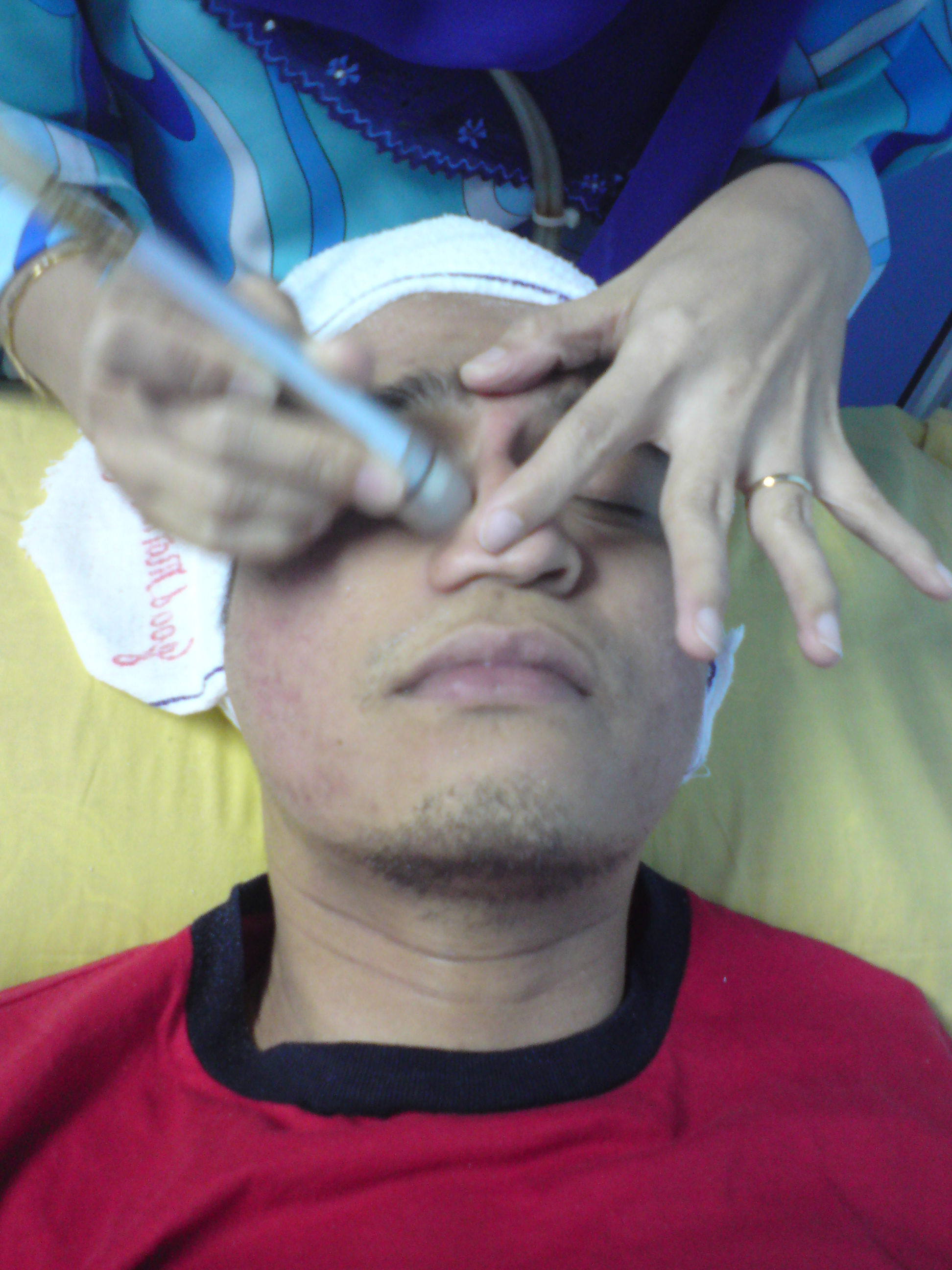 THIRD STEP- Higher pressure vacuum for my white head prone nose. I can feel the crystal bit.