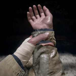 Ethan's reattached hand