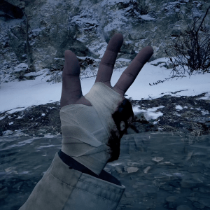 Ethan's Bandaged Hand