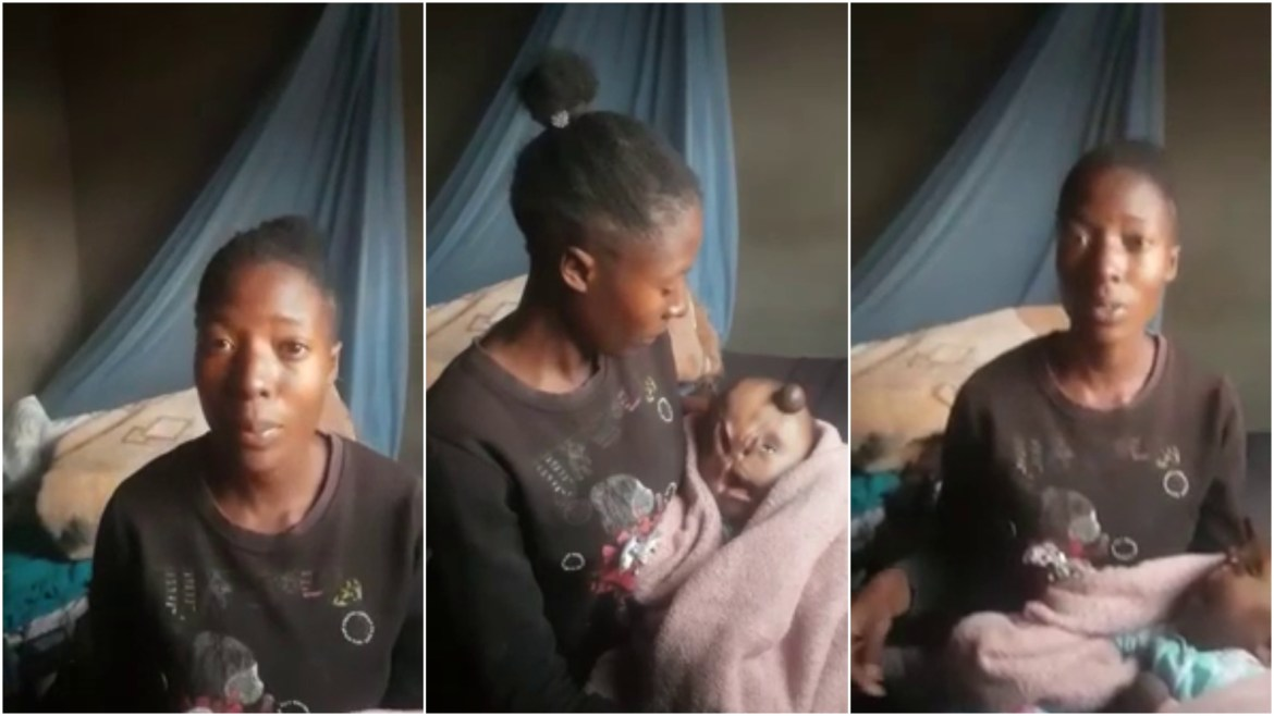 Mother Appeals For Help For Malformed Baby