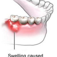 How to treat tooth abscess?