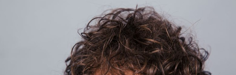 Are The First Signs Of Hair Loss Happening At A Younger Age Cyberpare