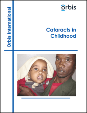 Cataracts in Childhood