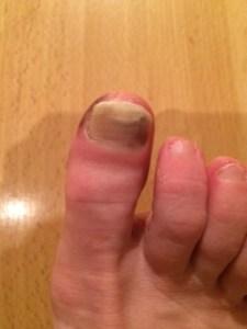 toenail July 13