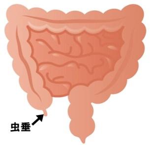 大腸位置図 虫垂