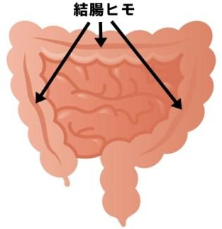 結腸ヒモ 大腸 位置 図