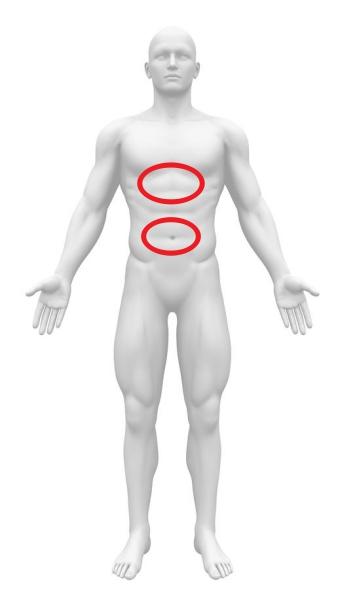 急性腹症 腹部大動脈破裂 心窩部痛 へそ周囲痛
