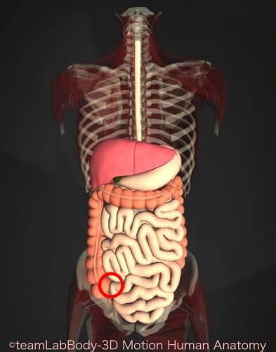 腸重積成人回盲部