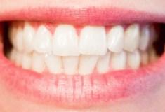 domowe wybielanie zębów nie jest bezpieczne