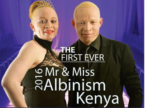 Résultats de recherche d'images pour «Mr. Albinism Kenya»