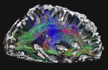 New high-resolution, non-invasive imaging techniques produce detailed diagrams of neural tracts, enabling new analyses of how brain regions are connected. Credit: Washington University – University of Minnesota Human Connectome Project consortium