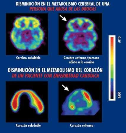 Disminución en el metabolismo cerebral drogadicto. Disminución en el metabolismo del corazón en un paciente con enfermedad cardiaca.