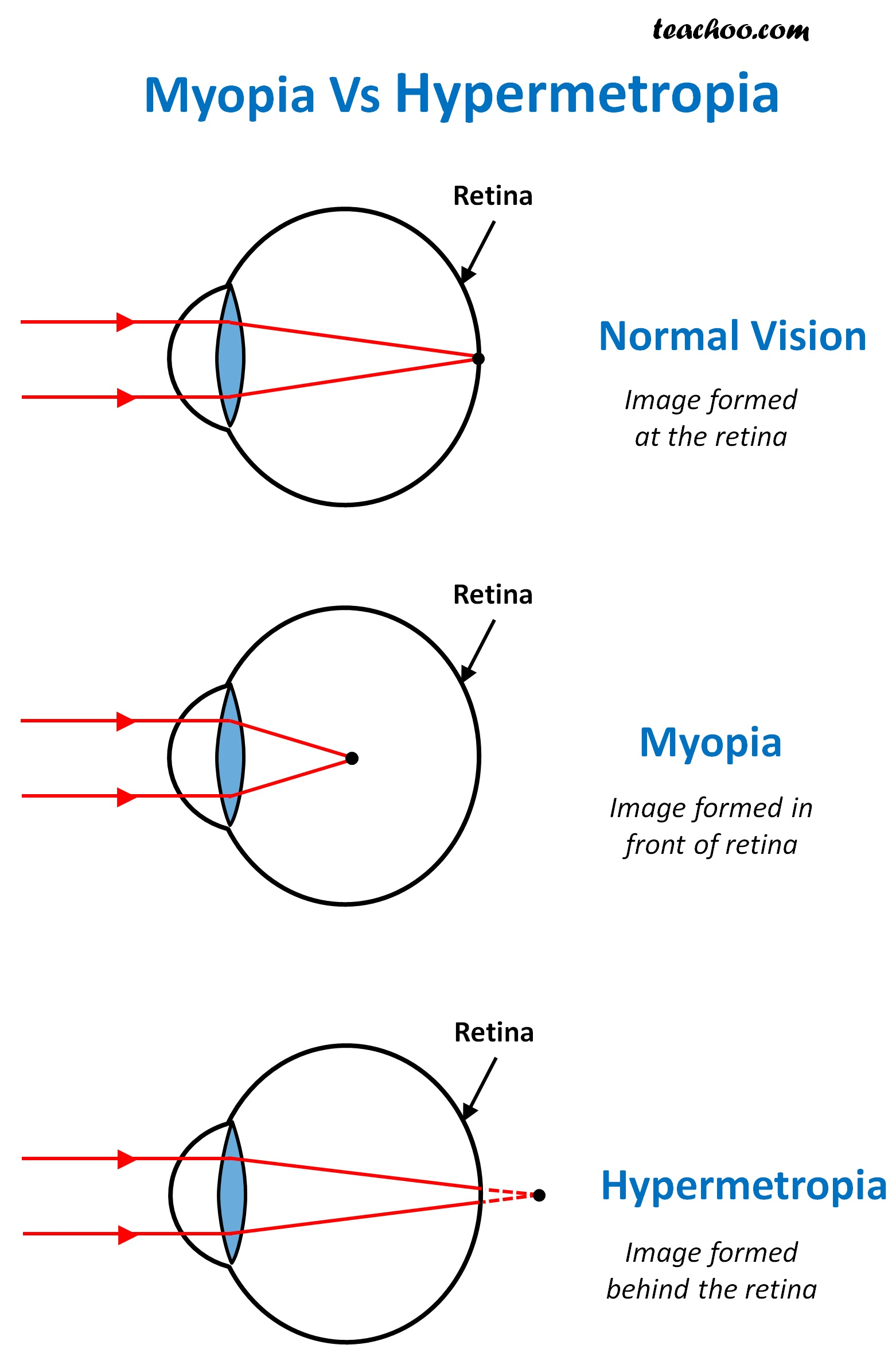 What Is The Difference Between Myopia And Hypermetropia