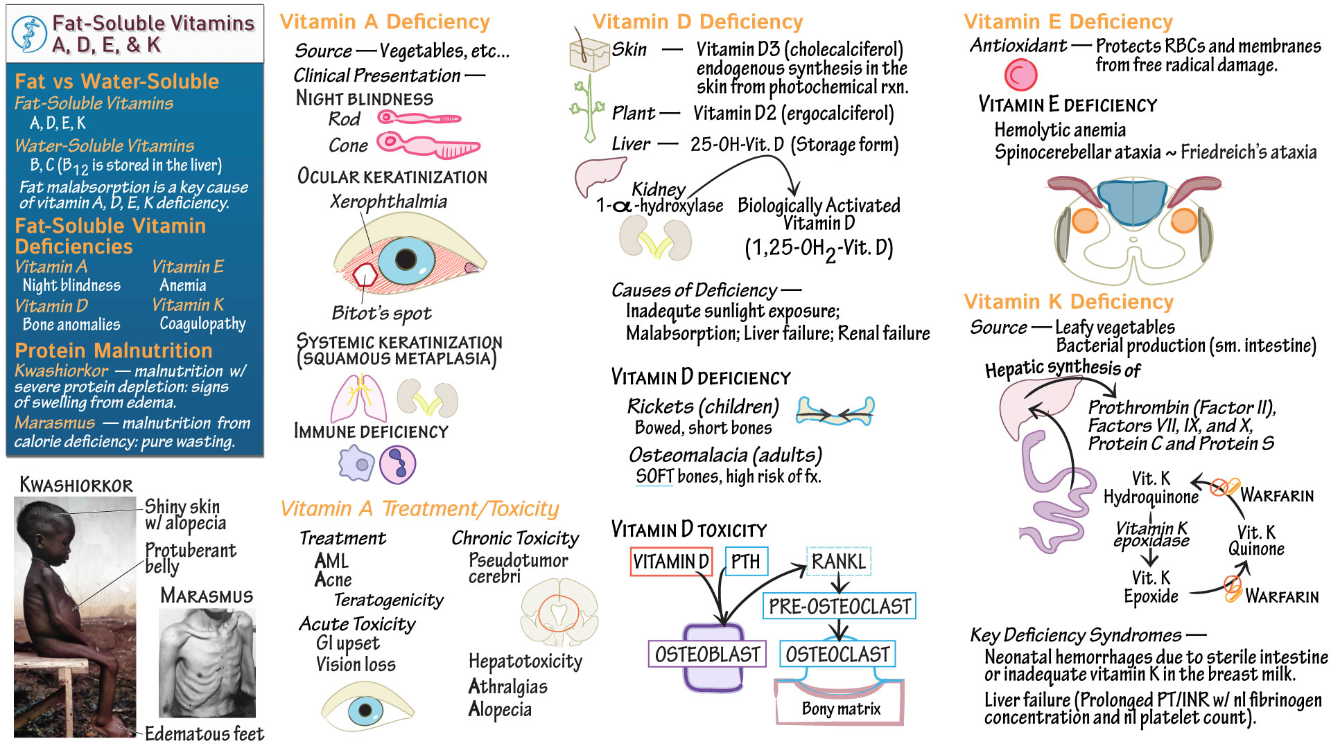Biochemistry Disorders Of Fat Soluble Vitamins Amp Protein