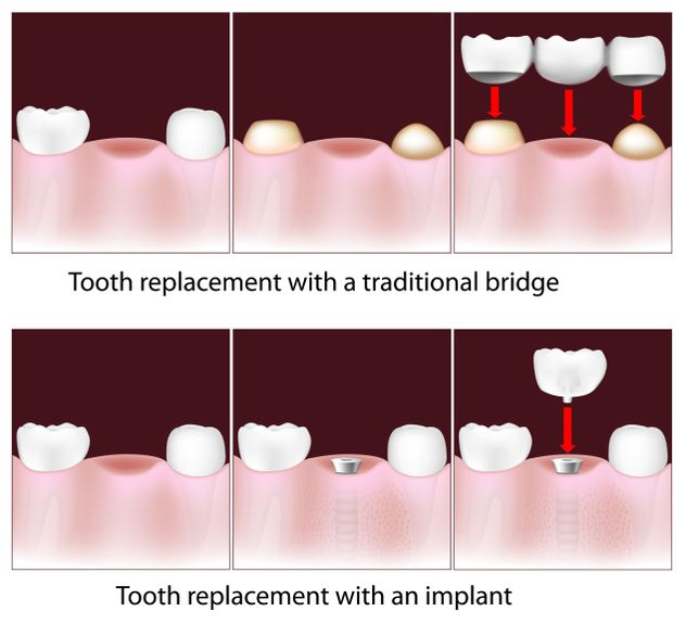 Illustration of a traditional bridge vs. dental implant