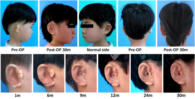 The new ear over time