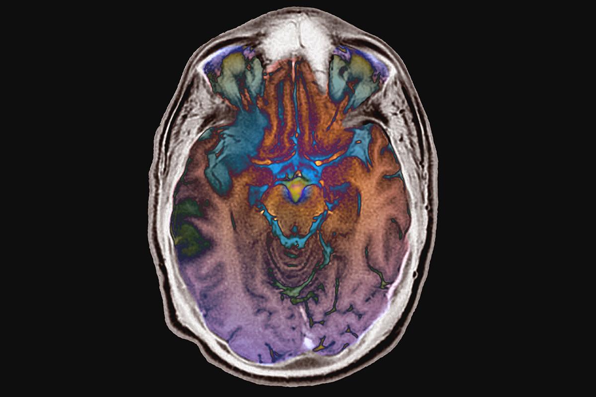 The brain can rewire itself