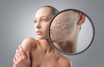 Damaged dry skin