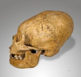 Schädedeformierung durch Inka. Photo Credit: Wikipedia Commons