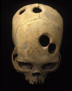 Cranial surgery by the Incas