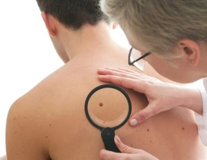 A study identifies NCOA3 as a novel therapeutic target for melanoma